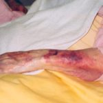 Sustained Elder Abuse Unidentified Violence and Neglect